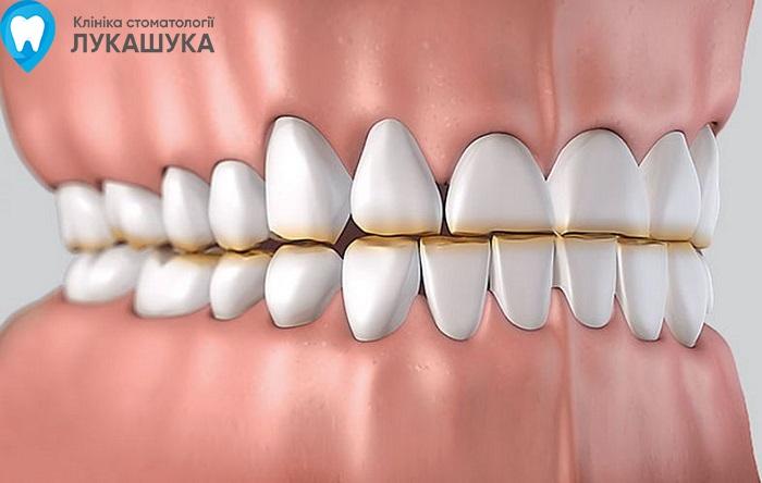 Бруксизм или скрип зубами во сне | Фото 3 - Клиника Лукашука
