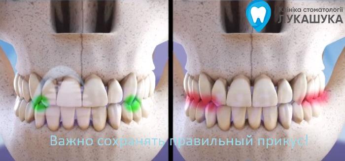 Бруксизм или скрип зубами во сне | Фото 2 - Клиника Лукашука