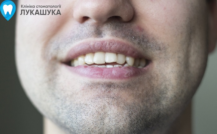 Бруксизм или скрип зубами во сне | Фото 4 - Клиника Лукашука
