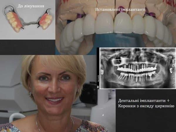 Имплантация зубов ЗА и ПРОТИВ | Фото 3 - Клиника Лукашука