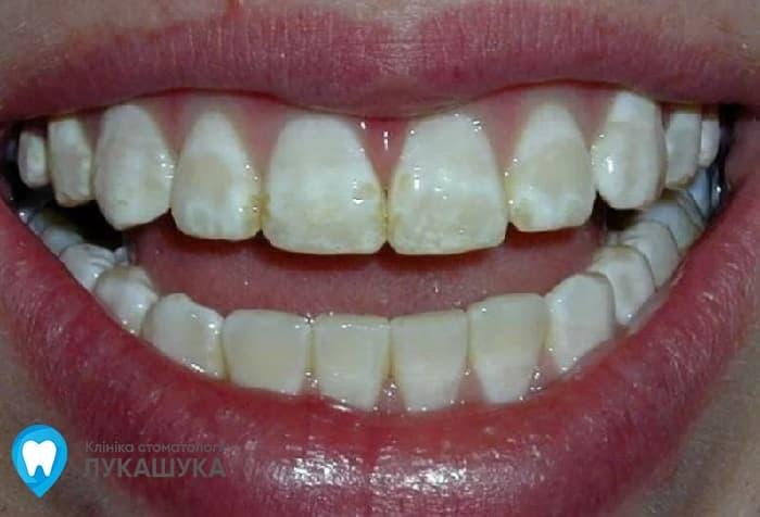 Флюороз: поражение зубов из за избытка фтора в воде | Фото 1 - Клиника Лукашука