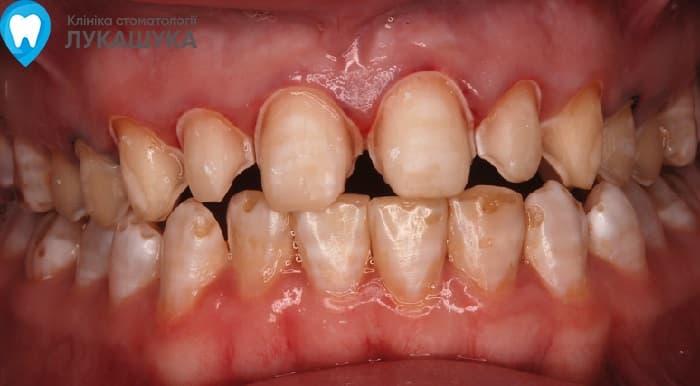 Флюороз: поражение зубов из за избытка фтора в воде | Фото 2 - Клиника Лукашука