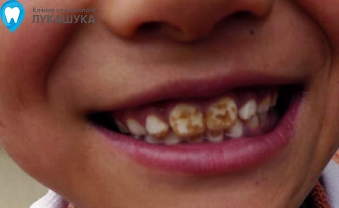 Флюороз: поражение зубов из за избытка фтора в воде | Фото 3 - Клиника Лукашука