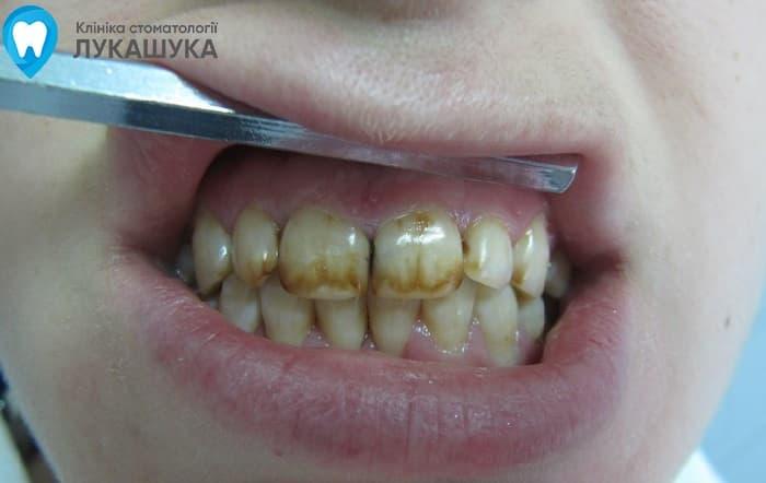Флюороз: поражение зубов из за избытка фтора в воде | Фото 6 - Клиника Лукашука