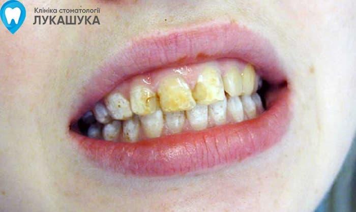 Флюороз: поражение зубов из за избытка фтора в воде | Фото - Клиника Лукашука