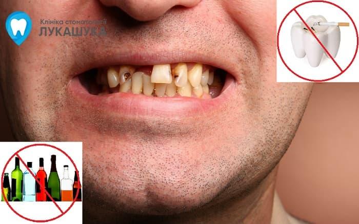 Гнилые зубы причины | Фото 2 - Клиника Лукашука