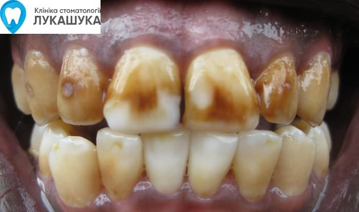 Стадии гниения зубов | Фото 3 - Клиника Лукашука