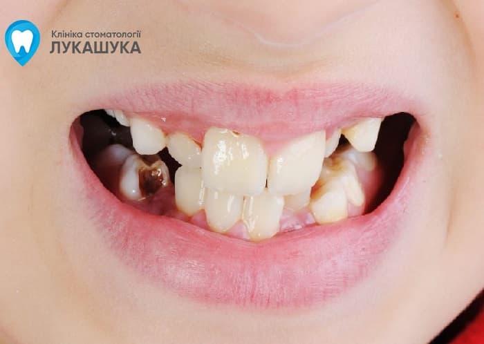Гнилые зубы лечение | Фото 3 - Клиника Лукашука