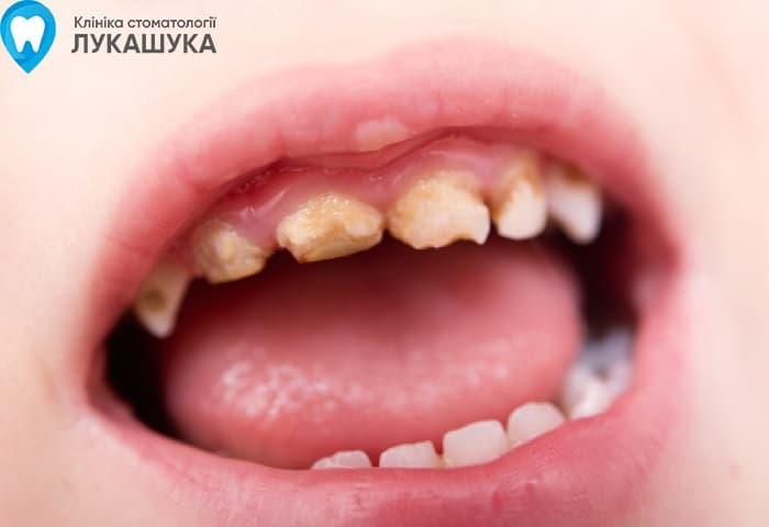 Гнилые зубы последствия | Фото 1 - Клиника Лукашука