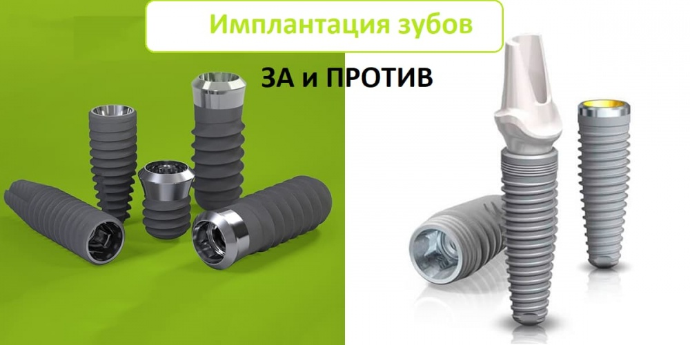 Имплантация зубов ЗА и ПРОТИВ | Фото 1 - Клиника Лукашука