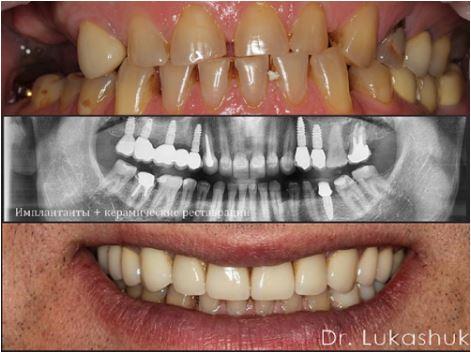 Имплантация зубов ЗА и ПРОТИВ | Фото 4 - Клиника Лукашука