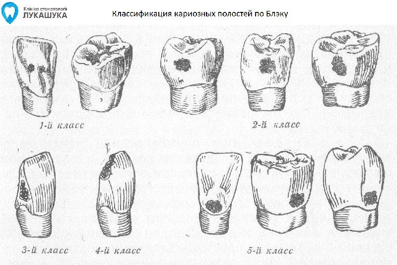 Классы по Блэку | Фото 1 - Клиника Лукашука