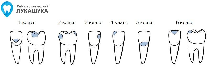 Классы по Блэку | Фото 2 - Клиника Лукашука