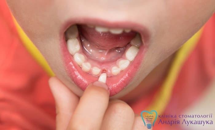 В среднем молочные зубы начинают выпадать у детей в возрасте от пяти до семи лет. Если вы пока не замечаете никаких изменений и не слышите жалобы ребенка на шатающиеся зубки, то не нужно паниковать. Если до этого не было проблем с зубами, то, скорее всего, время еще не пришло.