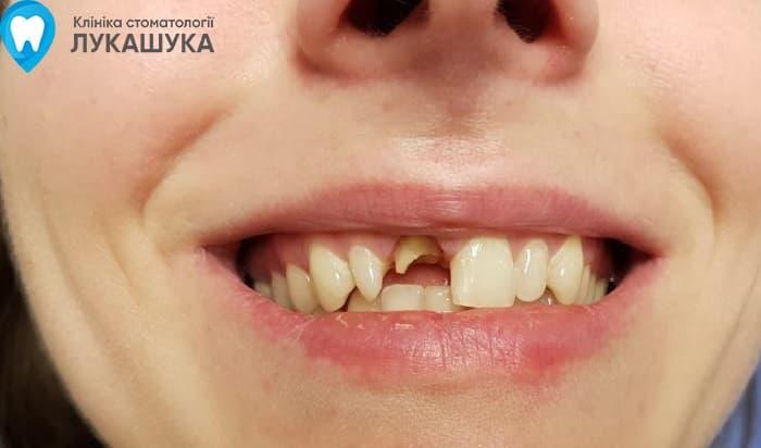 Откололся зуб | Фото 1 - Клиника Лукашука