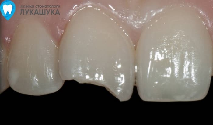 Откололся зуб | Фото 2 - Клиника Лукашука