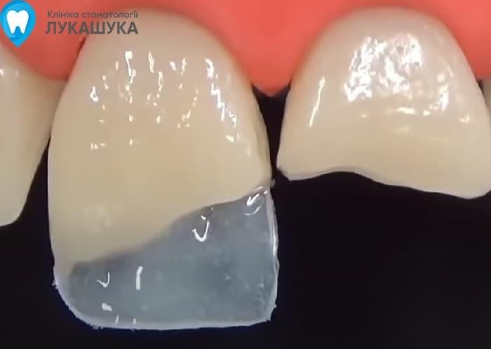 Откололся зуб | Фото 9 - Клиника Лукашука