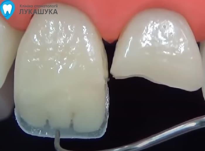 Откололся зуб | Фото 10 - Клиника Лукашука