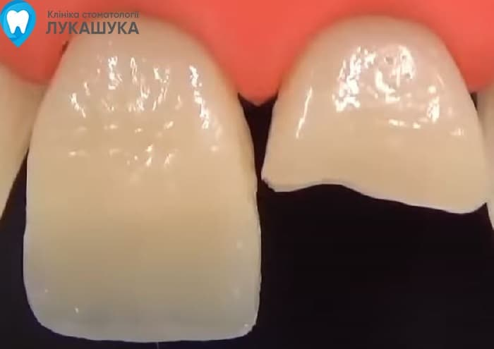 Откололся зуб | Фото 11 - Клиника Лукашука