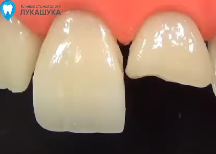 Откололся зуб | Фото 12 - Клиника Лукашука