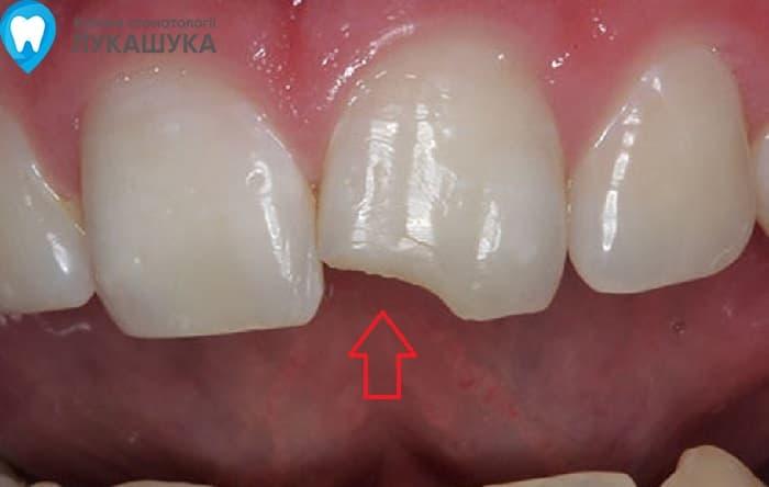 Откололся зуб | Фото 4 - Клиника Лукашука