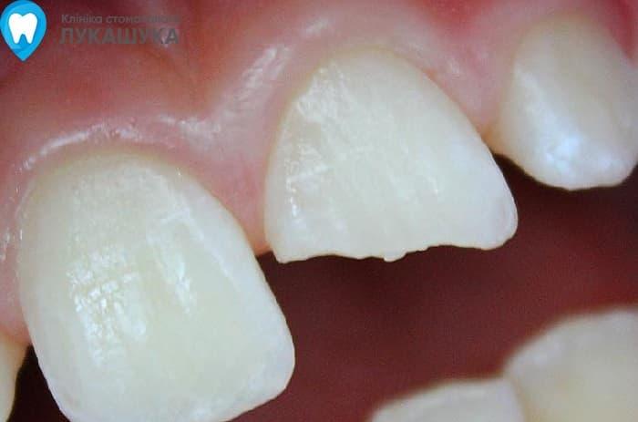 Откололся зуб | Фото 7 - Клиника Лукашука
