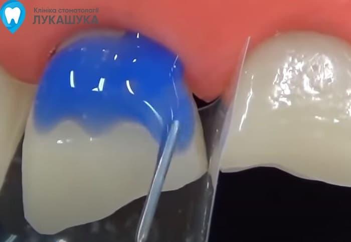 Откололся зуб | Фото 8 - Клиника Лукашука
