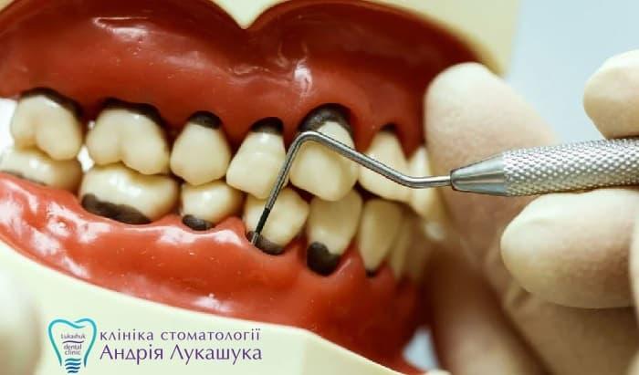 Диагностика пародонтоза | Фото 2 - Клиника Лукашука
