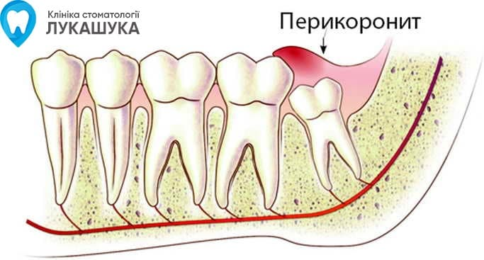 Перикоронит | Фото 1 - Клиника Лукашука
