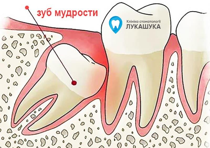Перикоронит | Фото 3 - Клиника Лукашука