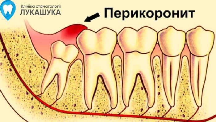 Перикоронит | Фото 6 - Клиника Лукашука
