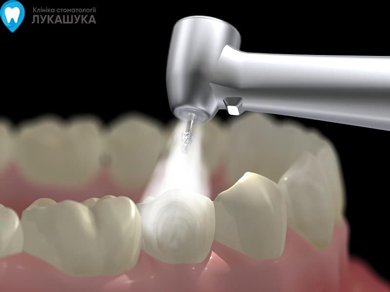 Пломба в стоматологии | Фото 2 - Клиника Лукашука
