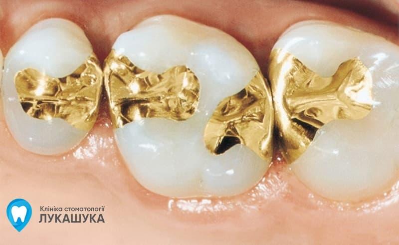Пломбы из золота | Фото 1 - Клиника Лукашука