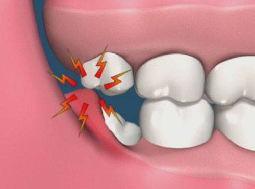 Почему болит зуб мудрости во время своего роста