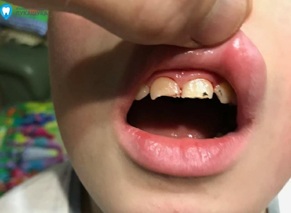 Ребенок выбил зуб | Фото 3 - Клиника Лукашука