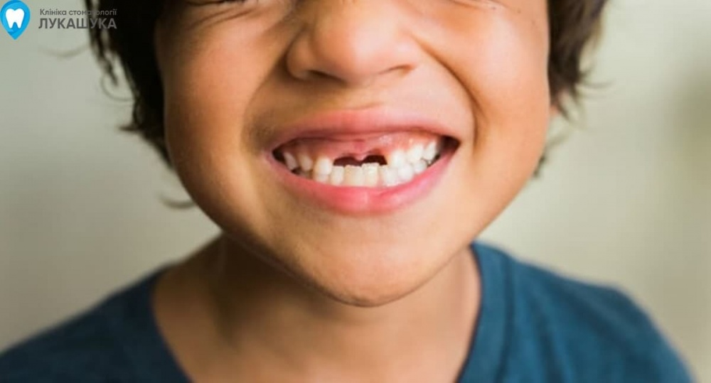 Ребенок выбил постоянный передний зуб | Фото 5 - Клиника Лукашука