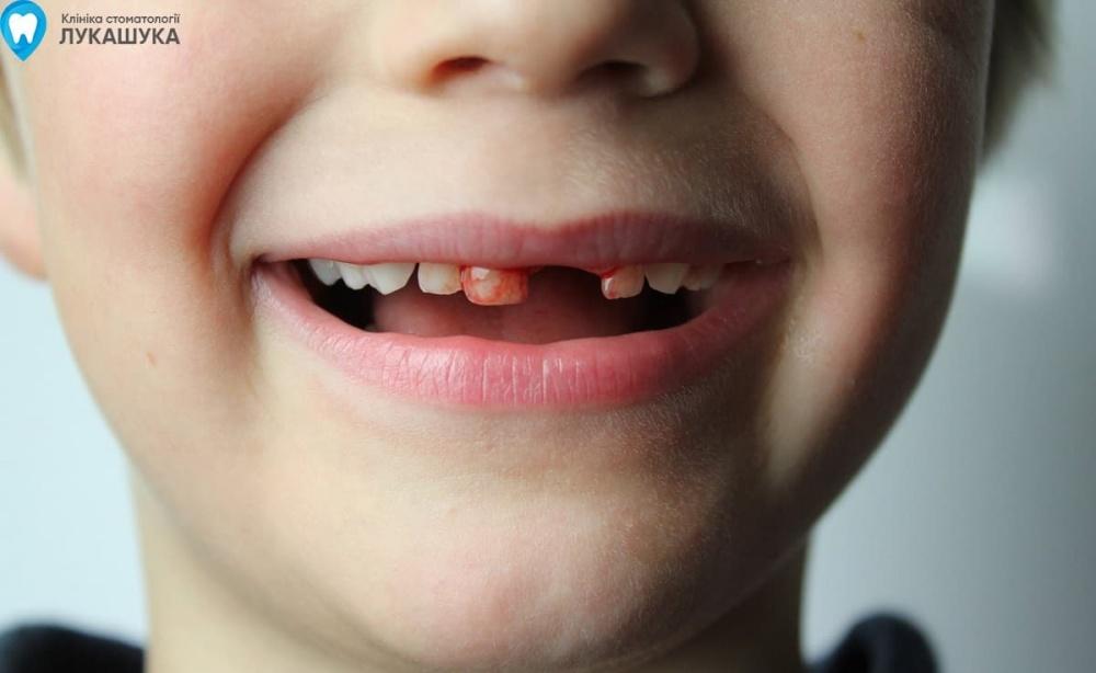 Ребенок выбил зуб | Фото 2 - Клиника Лукашука