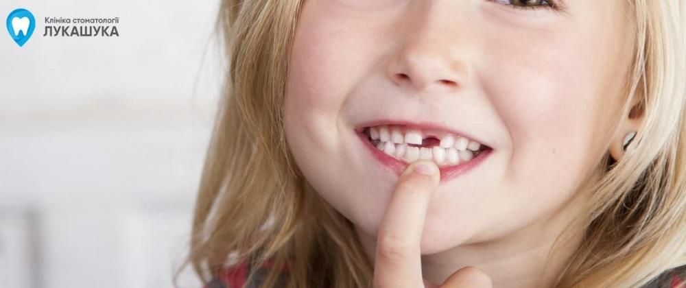 Ребенок выбил молочный зуб | Фото 4 - Клиника Лукашука