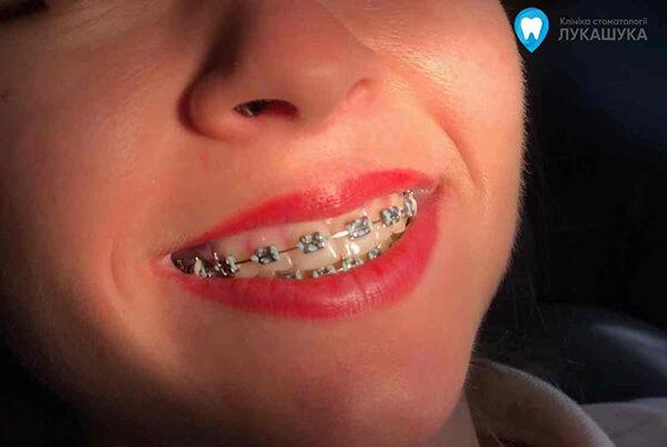 Как отбелить ортодонтические лигатуры