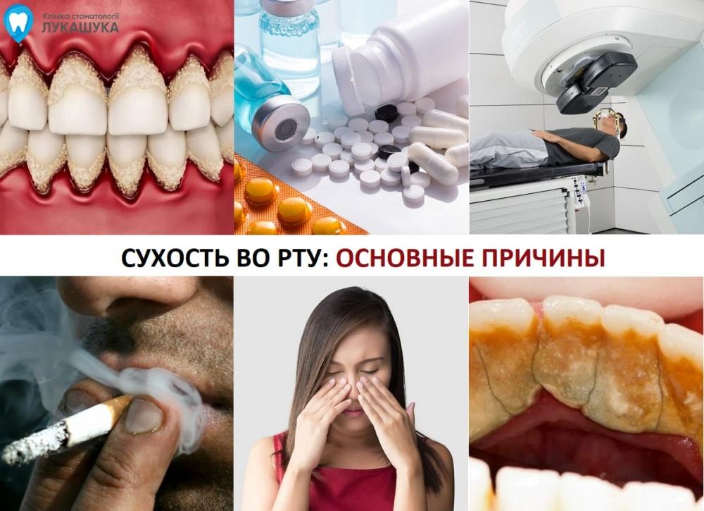 Сухость во рту | Фото 2 - Клиника Лукашука