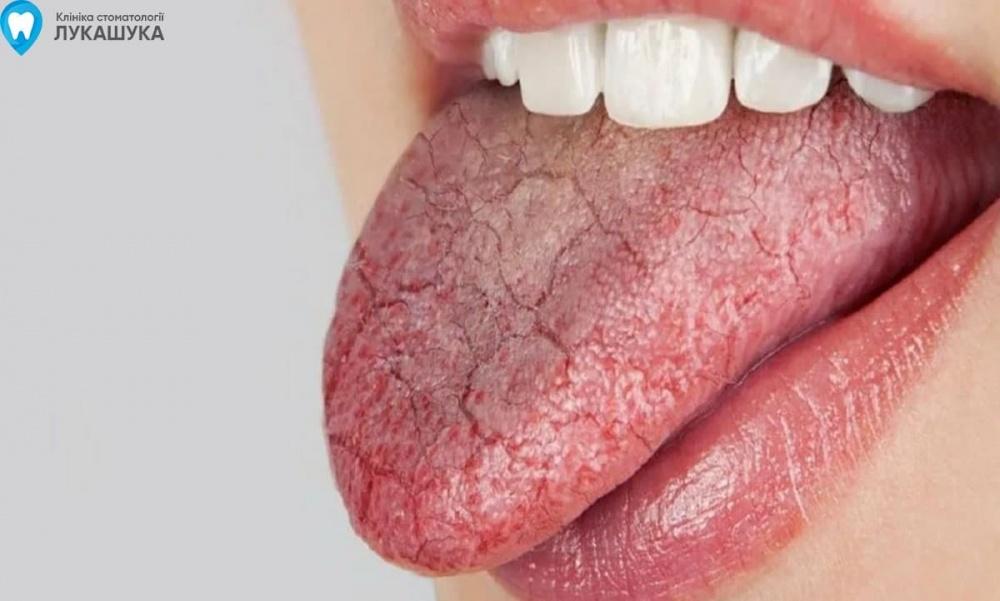 Сухость во рту | Фото 1 - Клиника Лукашука
