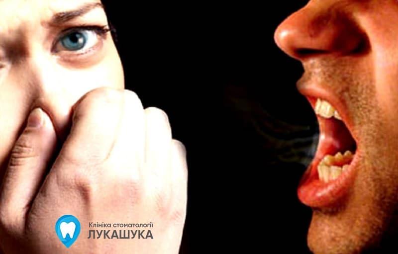 Запах изо рта (галитоз) | Фото 2 - Клиника Лукашука