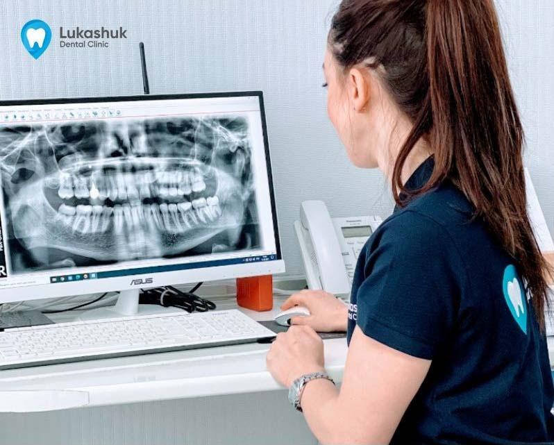 Рентген у стоматология